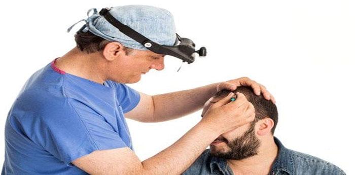 متخصص کاشت مو