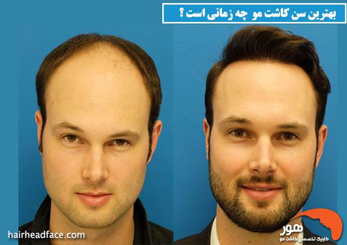 بهترین سن کاشت مو