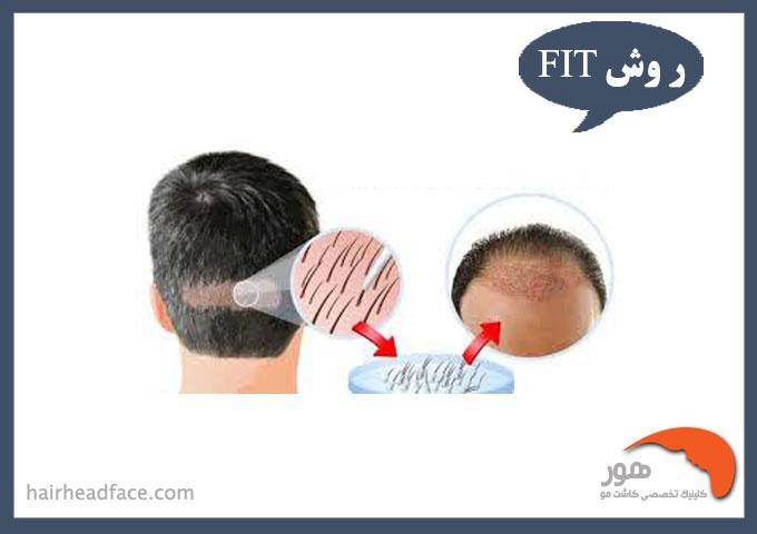 کاشت مو با روش fit