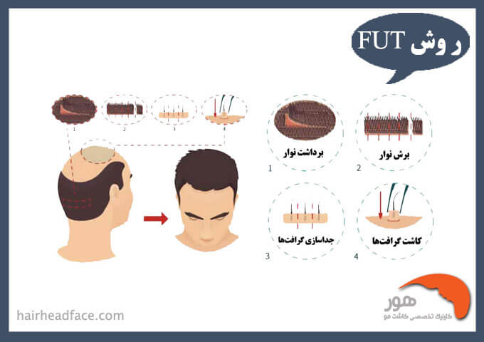 روش fut در کاشت مو