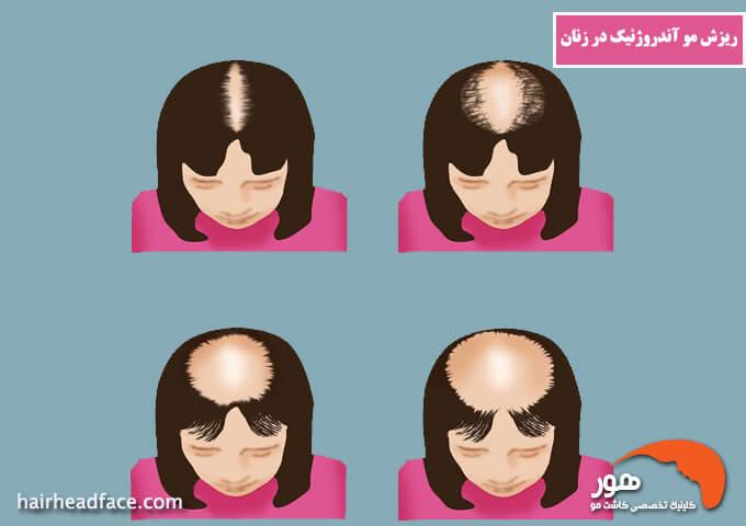 ریزش مو آندروژنیک در زنان