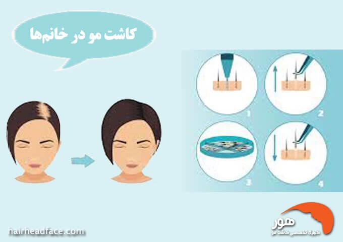کاشت مو در خانم ها