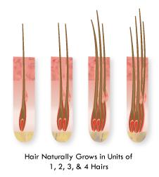 پیوند موی طبیعی به روش FUT