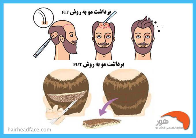 برداشت مو به روش fit و برداشت مو به روش fut
