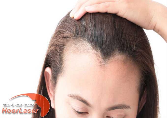 ریزش مو الگو مردانه در زنان