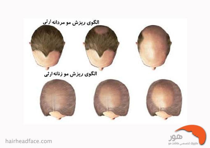 تفاوت الگو ریزش مو آندروژنیک در زنان و مردان