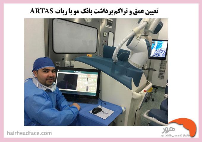تعیین عمق و تراکم برداشت بانک مو با ربات ATRIS
