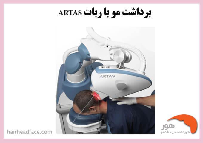 کاشت مو با دستگاه