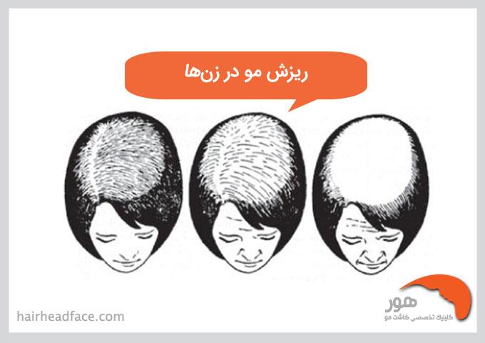 ریزش مو در زنها