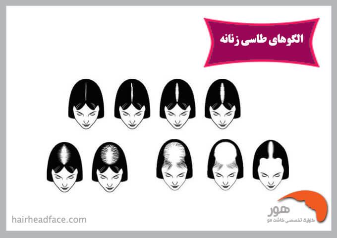 الگو ریزش مو زنانه