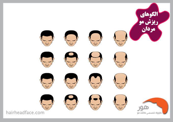 الگو ریزش مو مردانه