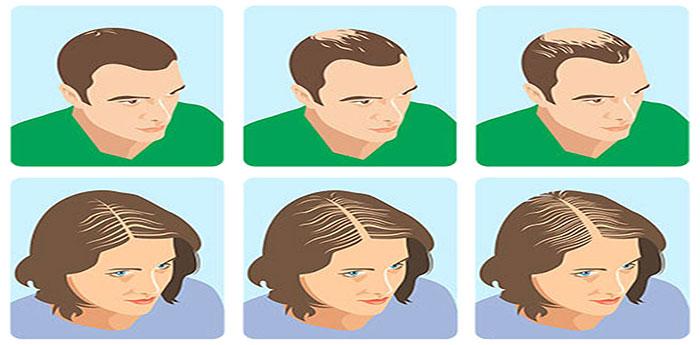 ریزش مو در زنان و مردان