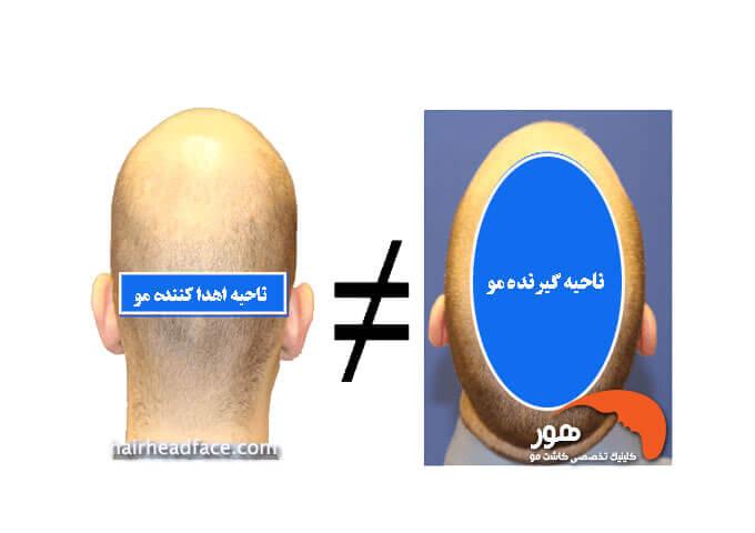 ناحیه اهدا کننده مو و ناحیه گیرنده مو در کاشت مو