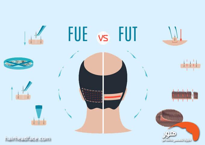 مقایسه روش کاشت مو نواری با روش کاشت مو تار به تار