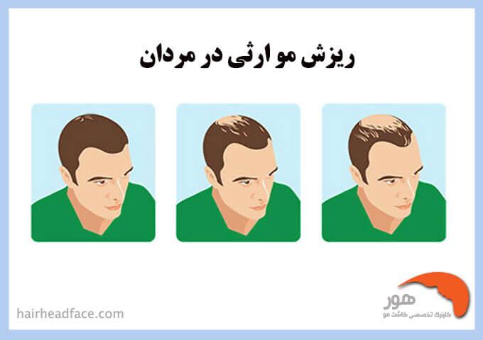 درمان ریزش مو ارثی