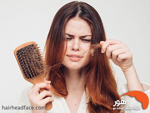 ریزش مو گذرا