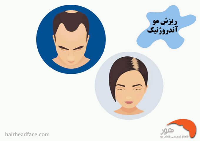 درمان ریزش مو آندروژنیک با فیناستراید