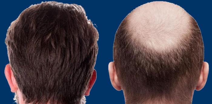 پیوند مو طبیعی