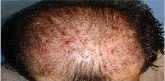 درمان جوش بعد کاشت مو