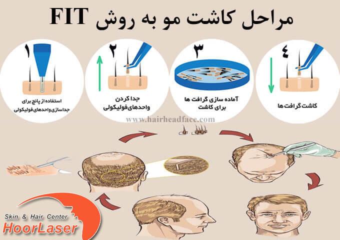 مراحل کاشت مو به روش fit یا تار به تار