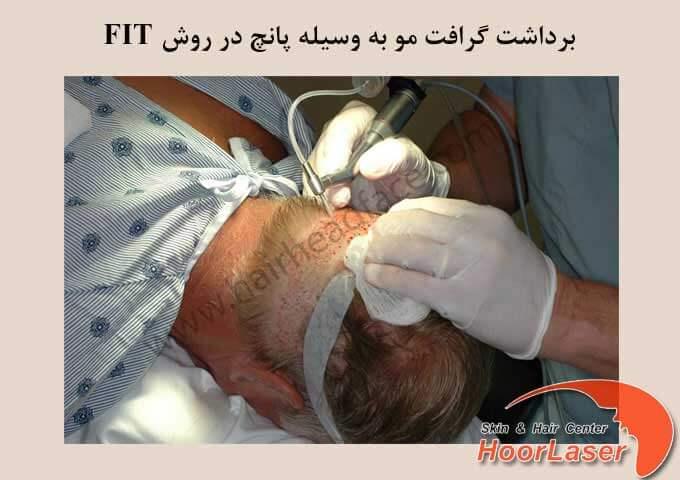 برداشت گرافت مو در کاشت مو به روش fit