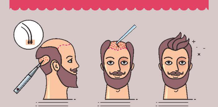 کاشت مو چگونه انجام می شود