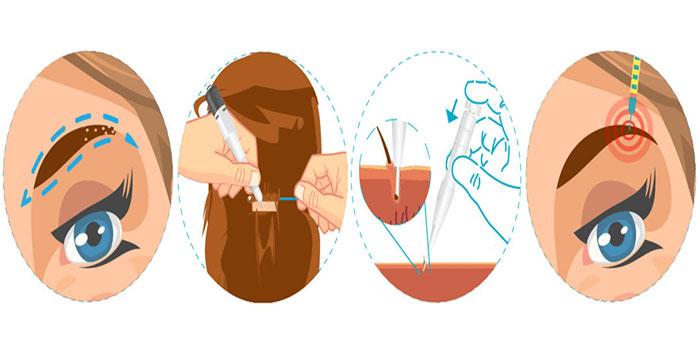 کاشت ابرو چگونه انجام میشود