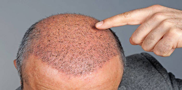معایب کاشت مو