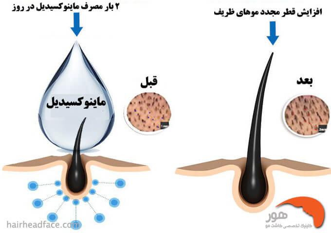 تاثیر داروی ماینوکسیدیل در درمان ریزش مو