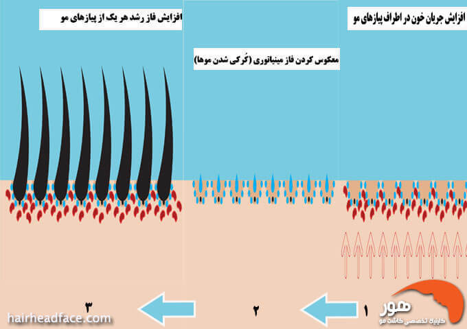 مکانیسم عمل ماینوکسیدیل در درمان ریزش مو