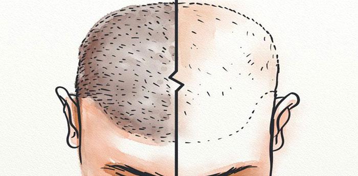 کاشت مو نا موفق