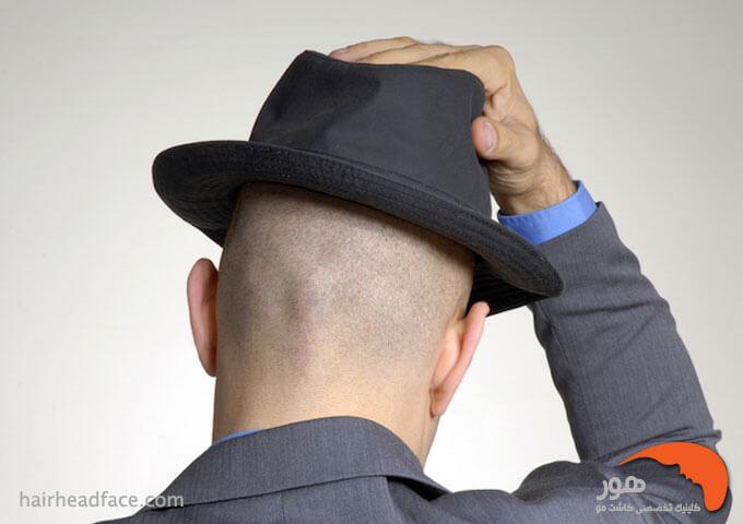 کلاه گذاشتن بعد کاشت مو