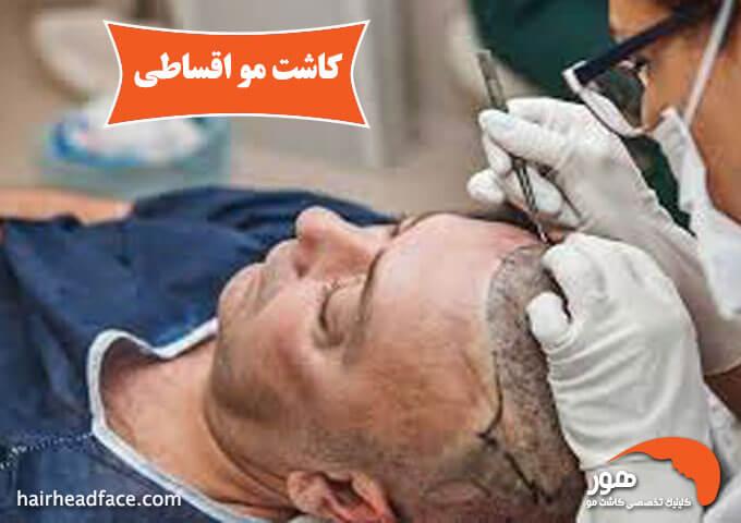 کاشت مو اقساطی در اصفهان