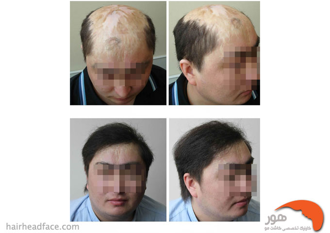 کاشت مو در محل اسکار سوختگی