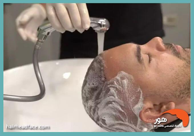 شستن موی سر بعد از کاشت مو
