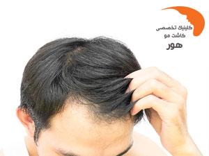 درمان دارویی ریزش مو