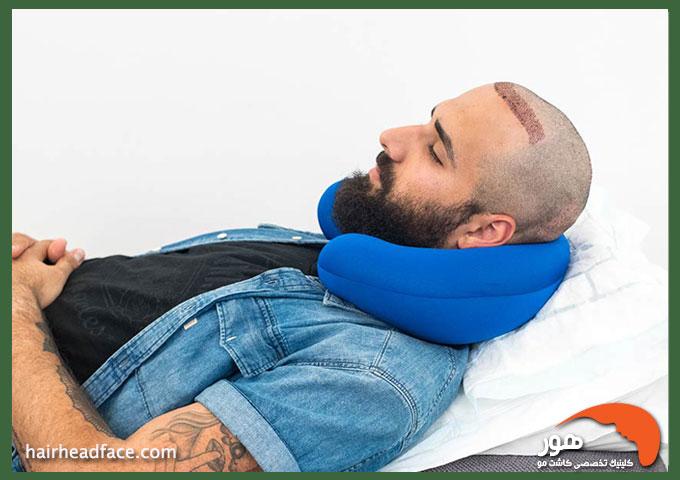 روش صحیح خوابیدن بعد از کاشت مو