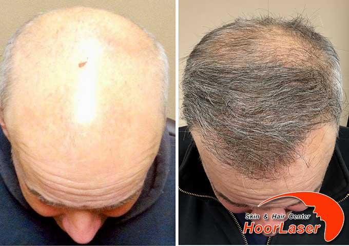 کاشت مو در افراد با مو سفید